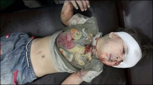 Five year old Omar Daqneesh whose image went worldwide is shown following treatment by doctors in Aleppo (Twitter)