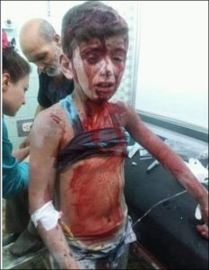This Syrian boy's image did not go viral because he was injured by the extremist forces fighting the Syrian government (image on Twitter)